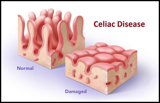 what does a damaged intestine look like? a recap of 3 diagrams to mucus in stool celiac disease celiac disease diagram